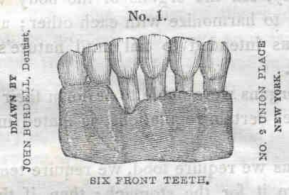 Six Front Teeth, Four Receded by Tobacco